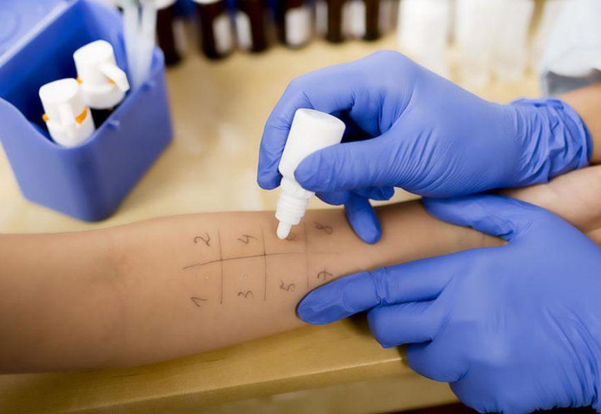 Тест на определение аллергии