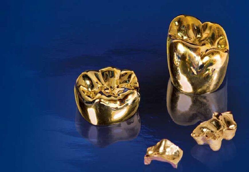 Для чего используют золото в стоматологии. Зубные коронки - что это