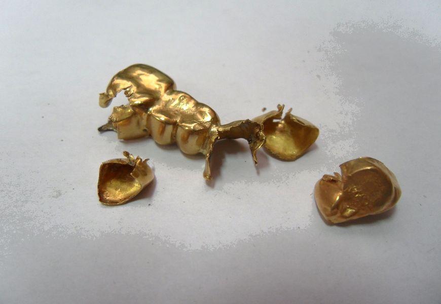 Золотые коронки 750 пробы