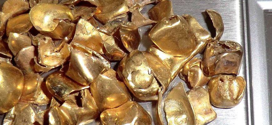 Зубное золото